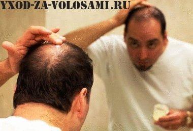 Методы лечения облысения у мужчин